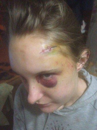 В Миколаєві хлопець 3 дні тримав у полоні і жорстоко бив свою 19-річну дівчину (ФОТО)