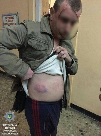 У Мукачеві подружжя стало жертвами розбійного нападу (ФОТО)