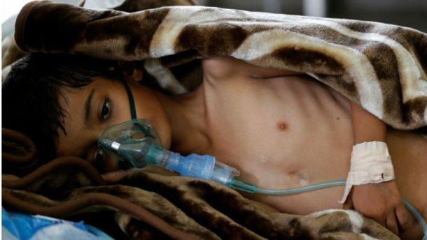 Кількість жертв епідемії холери у Ємені перевищила тисячу осіб
