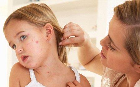 Закарпаттям шириться небезпечна для дітей хвороба