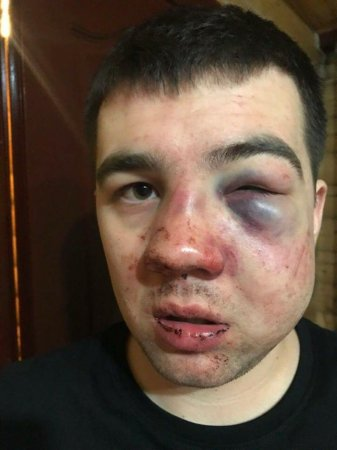 В Буковелі жорстоко побили сина депутата