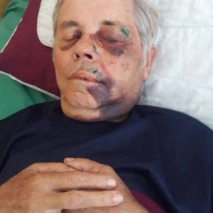 На Виноградівщині невідомі жорстоко побили і пограбували священика (ФОТО)
