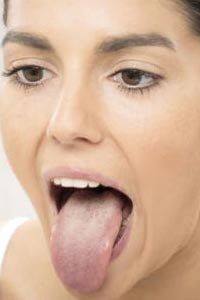 Зовнішній вигляд язика розповість про стан здоров'я