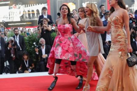 """Колишня """"Міс Італії"""", якій хлюпнули в обличчя кислотою, вийшла на червону доріжку (Фото)"""