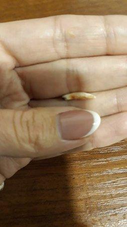 Закарпатка в м'ясному шойті  виявила зуб (ФОТО)