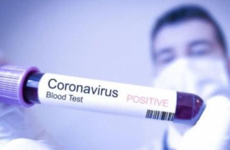 В Ужгороді у кількох медиків підтвердили коронавірус