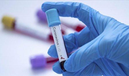 В Україні зареєстрували близько 27 тисяч випадків коронавірусу COVID-19