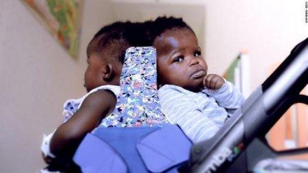 Вперше у світі: медики успішно розділили сіамських близнючок, які були зрощені головами